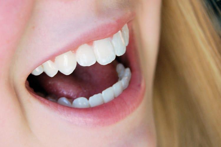 Žena, která se směje s otevřenými ústy